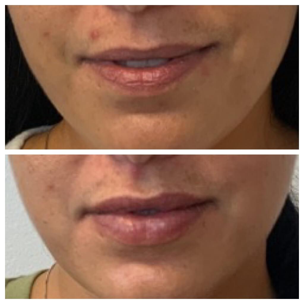 Lip Filler - 1 month after Restylane Refyne Treatment