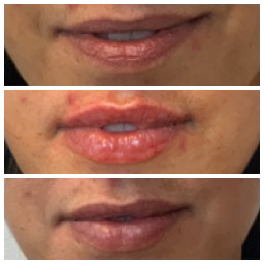 Lip Filler - before, after, and 1 month later with Restylane Refyne Treatment