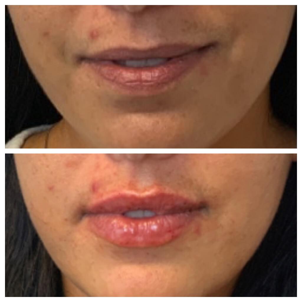 Lip Filler - Restylane Refyne