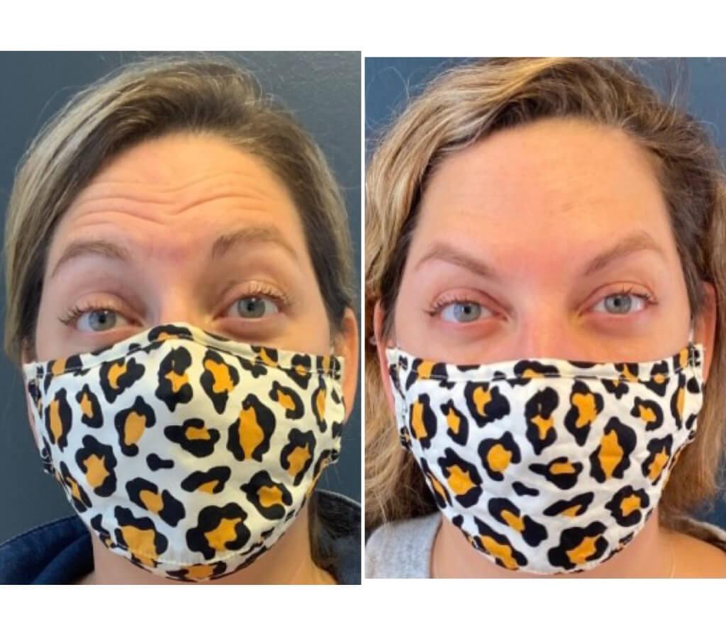 Botox - Forehead Wrinkles