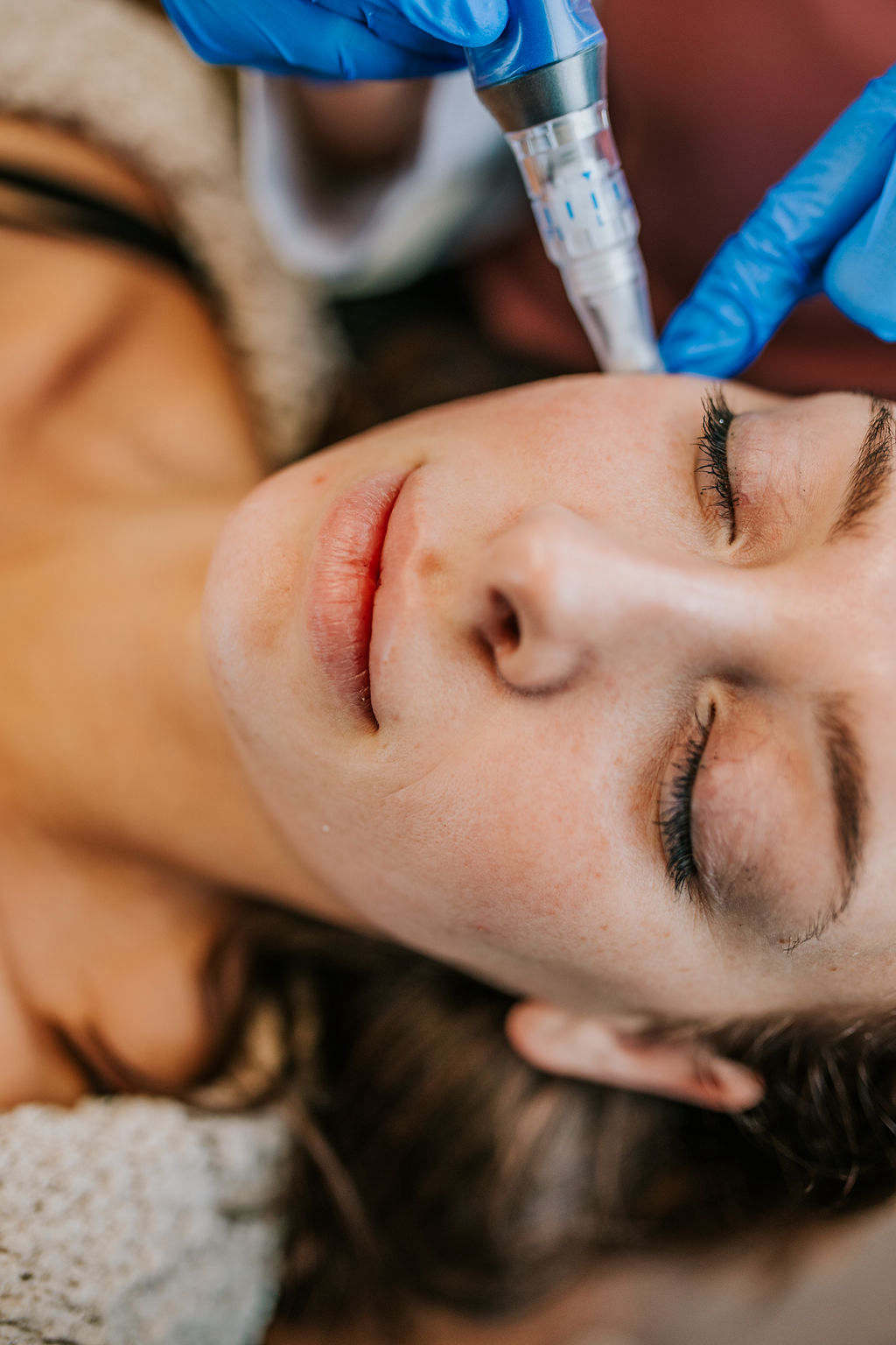 Am I a Candidate for Microneedling?