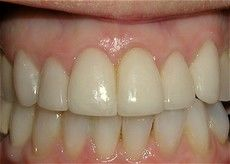 A closeup of a patient's teeth after getting a Connected Smile Solutions dental treatment.
