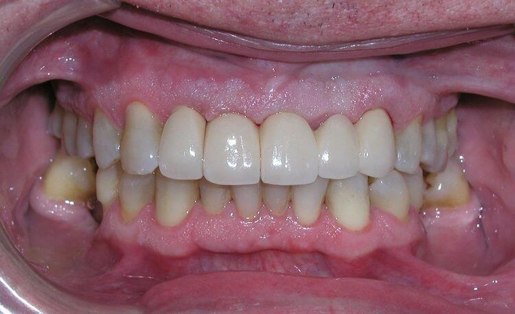 A closeup of a patient after receiving dental treatment at Connected Smile Solutions.