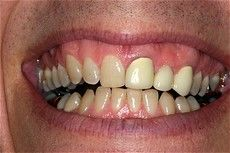 A closeup of a patient's teeth before getting treatment at Connected Smile Solutions.