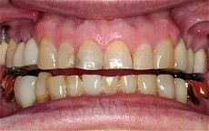 A closeup of a patient's teeth before getting a Connected Smile Solutions dental treatment.