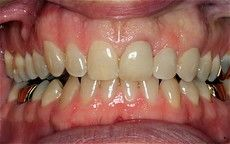 A closeup of a patient's teeth after getting dental care at Connected Smile Solutions.