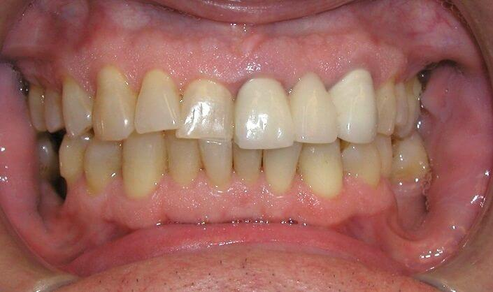 A closeup of a Connected Smile Solution patient's teeth before getting a dental treatment.