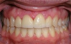 A closeup of a Connected Smile Solutions patient's teeth after dental service.