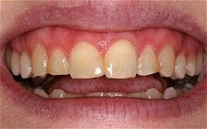 A closeup of a patient's teeth before getting a dental treatment at  Connected Smile Solutions.