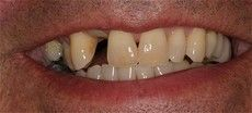 A closeup of a patient at Connected Smile Solutions with gapped teeth before getting treatment.
