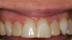 A closeup of a patient's teeth before getting a treatment at Connected Smile Solutions.