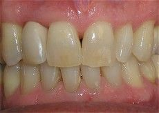 A closeup of a Connected Smile Solutions patient's teeth after getting dental care.