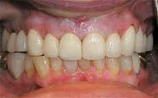 A closeup of a Connected Smile Solutions patient's teeth after a dental service.