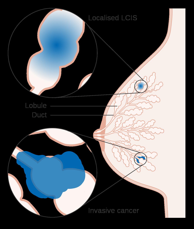 lcis infographic