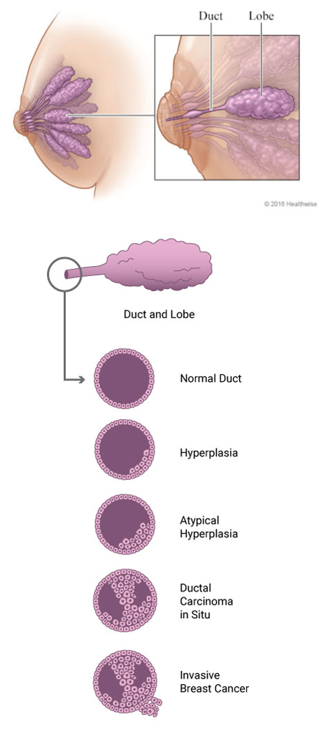 atypical hyperplasia infographic