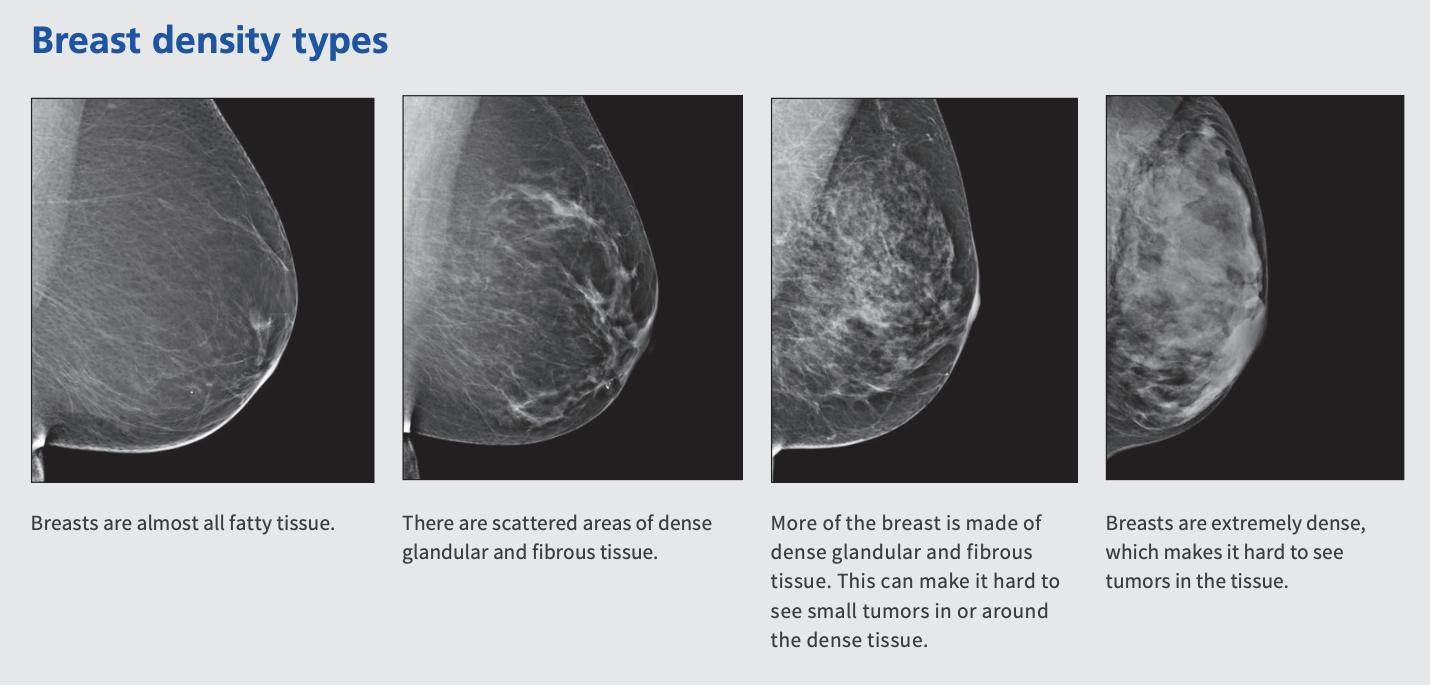dense breast infographic