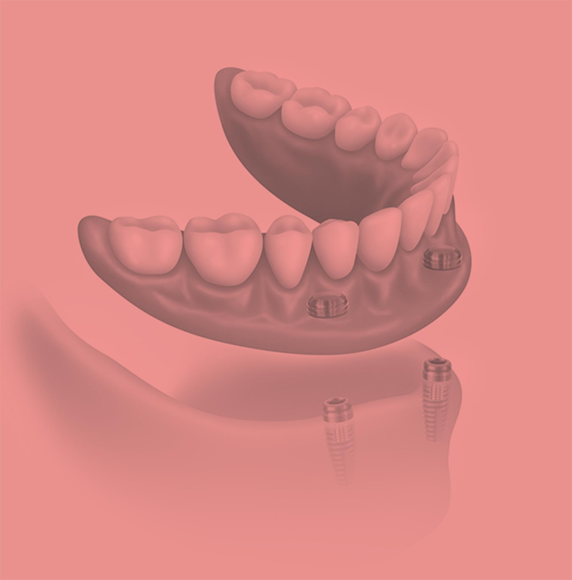 Photo of a dental implant illustration