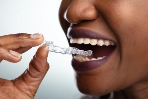 3 Reasons Not to Use DIY Orthodontics