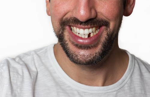 The Honest Truth About Your Missing Tooth