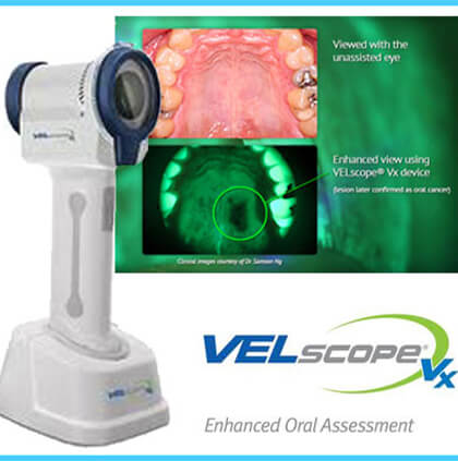 Velscope camera