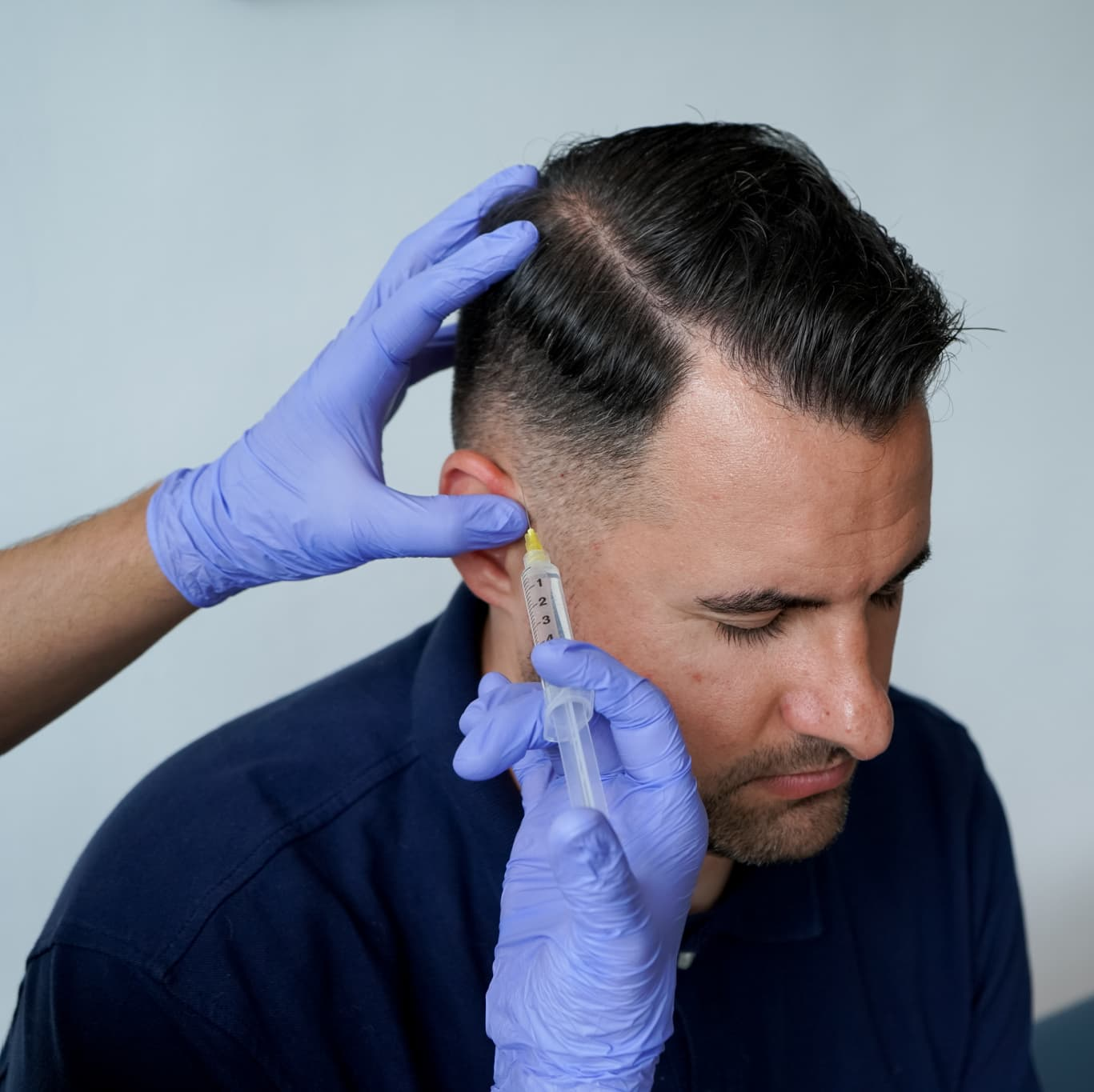 botox injection near man's hairline