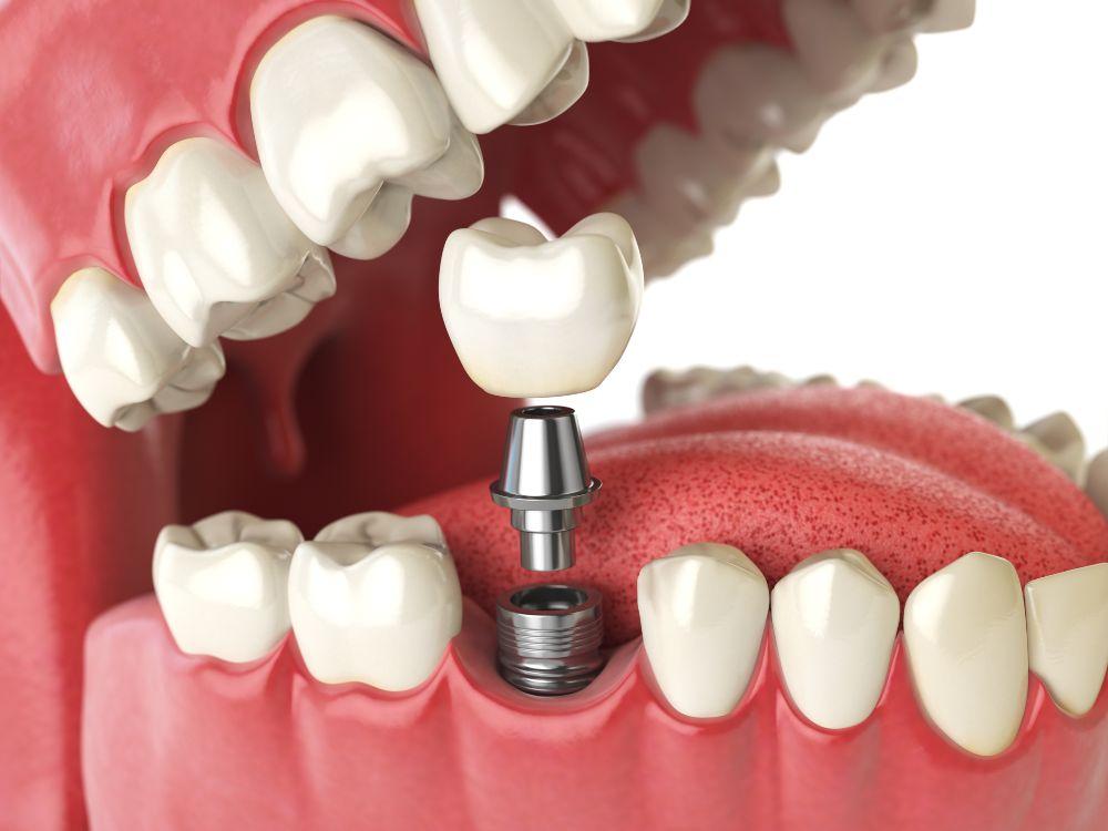 dental implant 3d