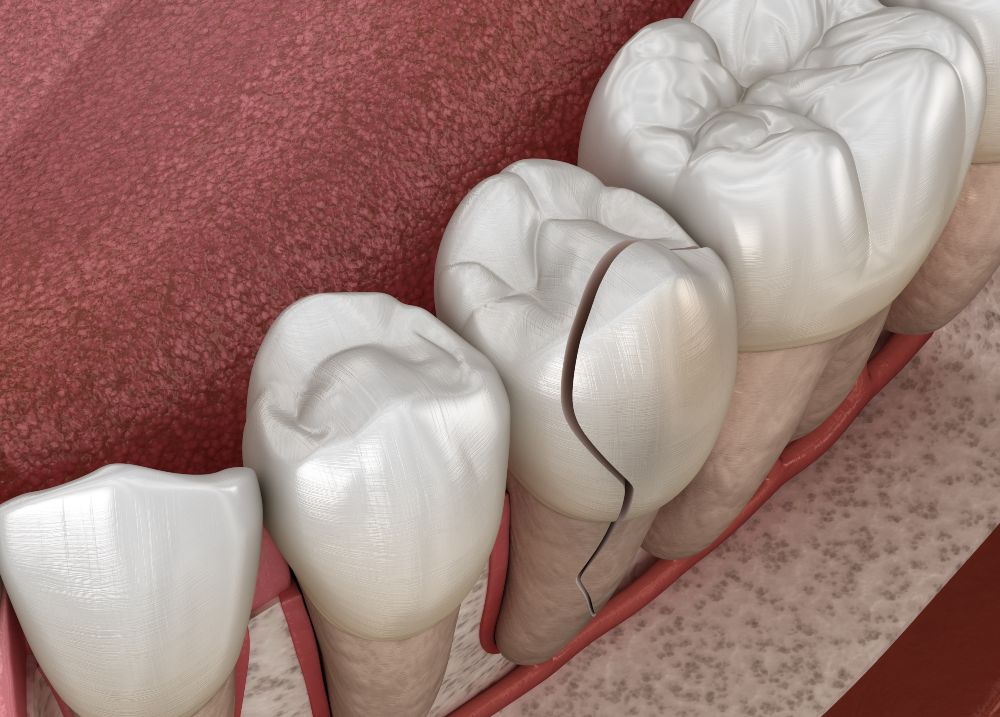 cracked tooth diagram