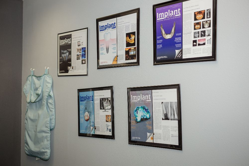posters of magazines on implants