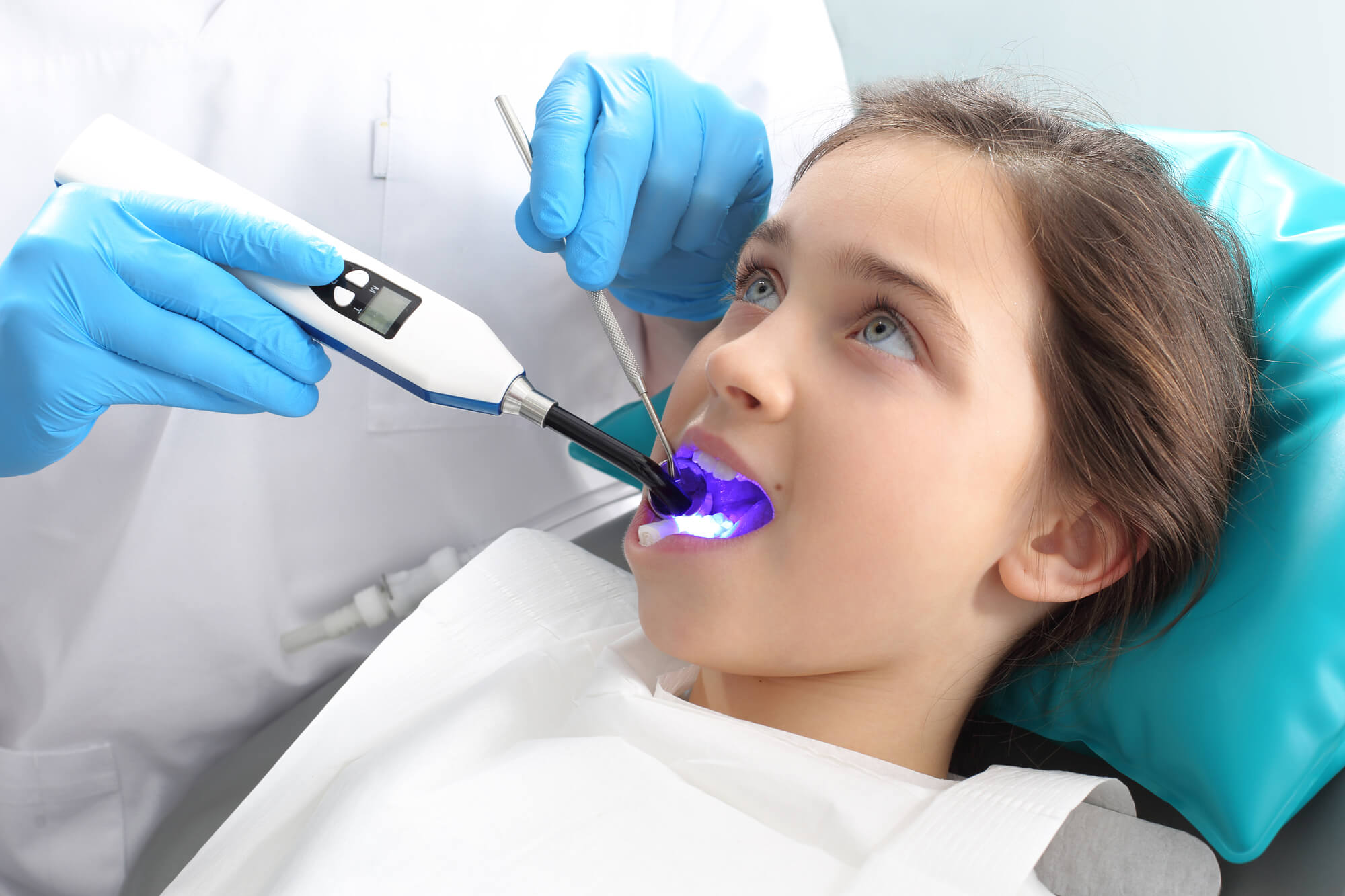 Young patient receiving dental sealants in West Palm Beach, FL.