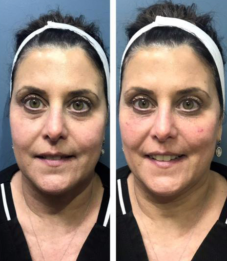 before/after of Tear Trough Filler Using Restylane Lyft and Restylane L.