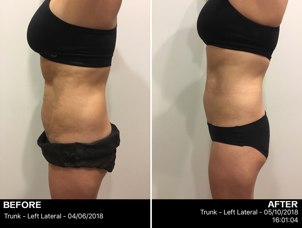 View of left lateral trunk of client before and after with flatter torso