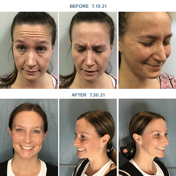 Female client before and after being treated with Botox and Juvéderm® Voluma™ XC