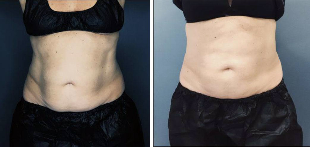 Coolsculpting image of woman's waist before and after