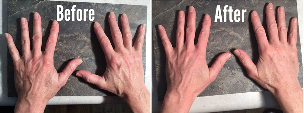 Before/After of hands with fillers used