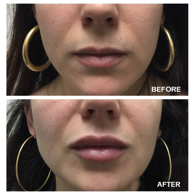 Before and after of lips after fillers
