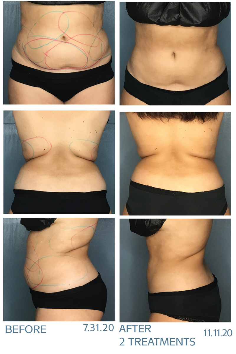 Front, back and side of client before and 2 months after CoolSculpting treatments