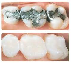 Why You Should Switch to Porcelain Fillings