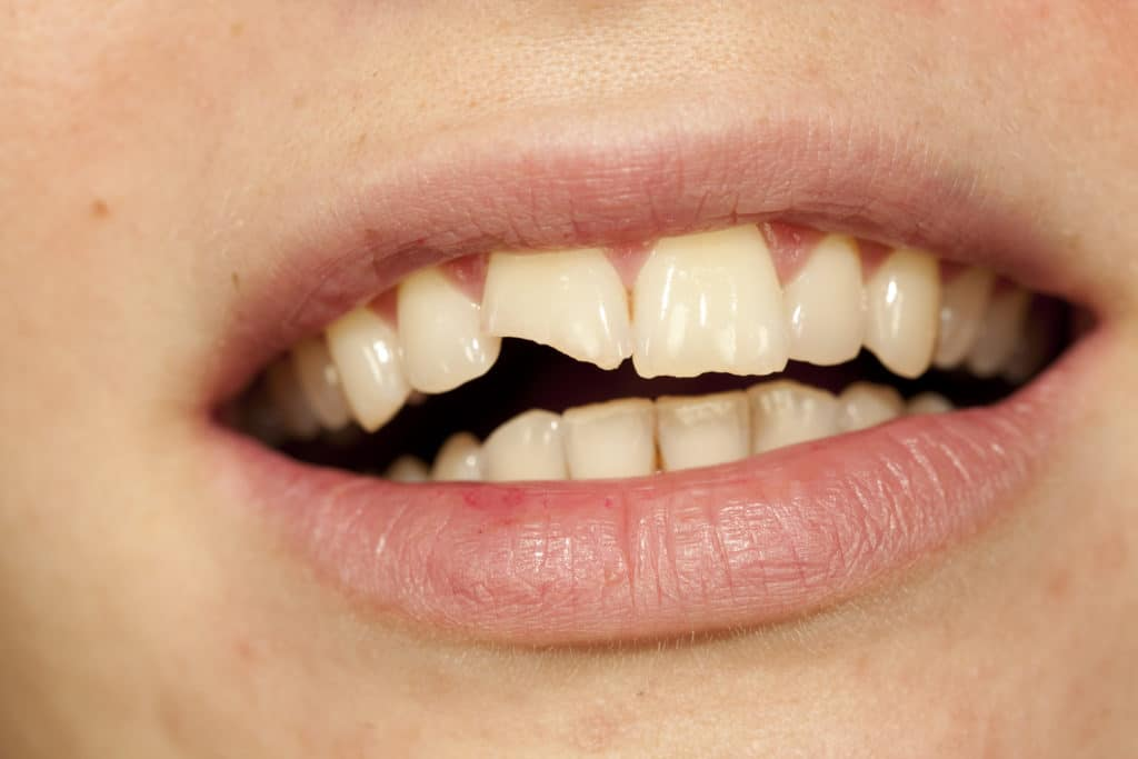 Chipped a Tooth? Dental Bonding is for You