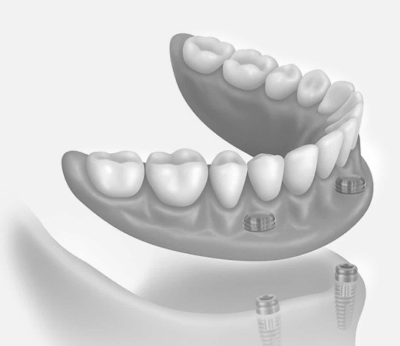 photo of a denture