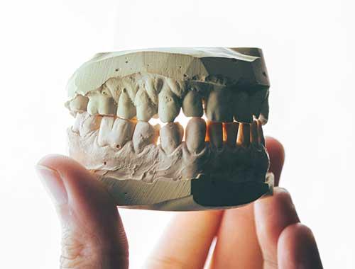Photo of a dental model