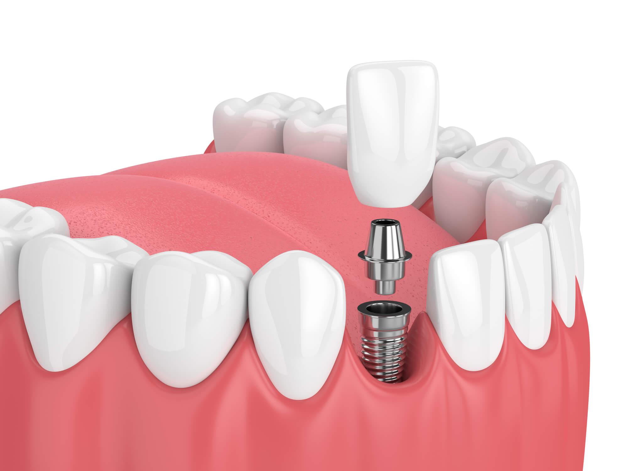 Diagram of Dental implants in everett wa.