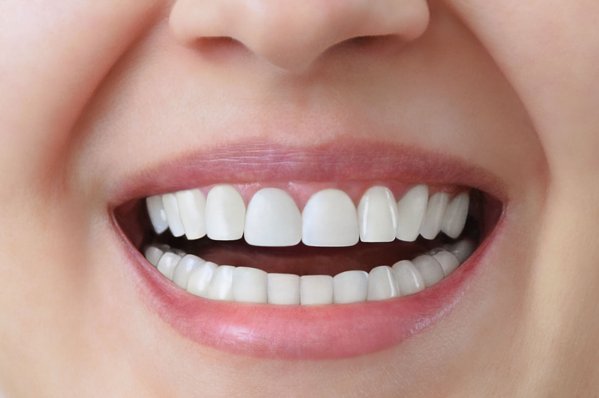 Closeup of a patient with Same Day Dental Crowns Everett WA