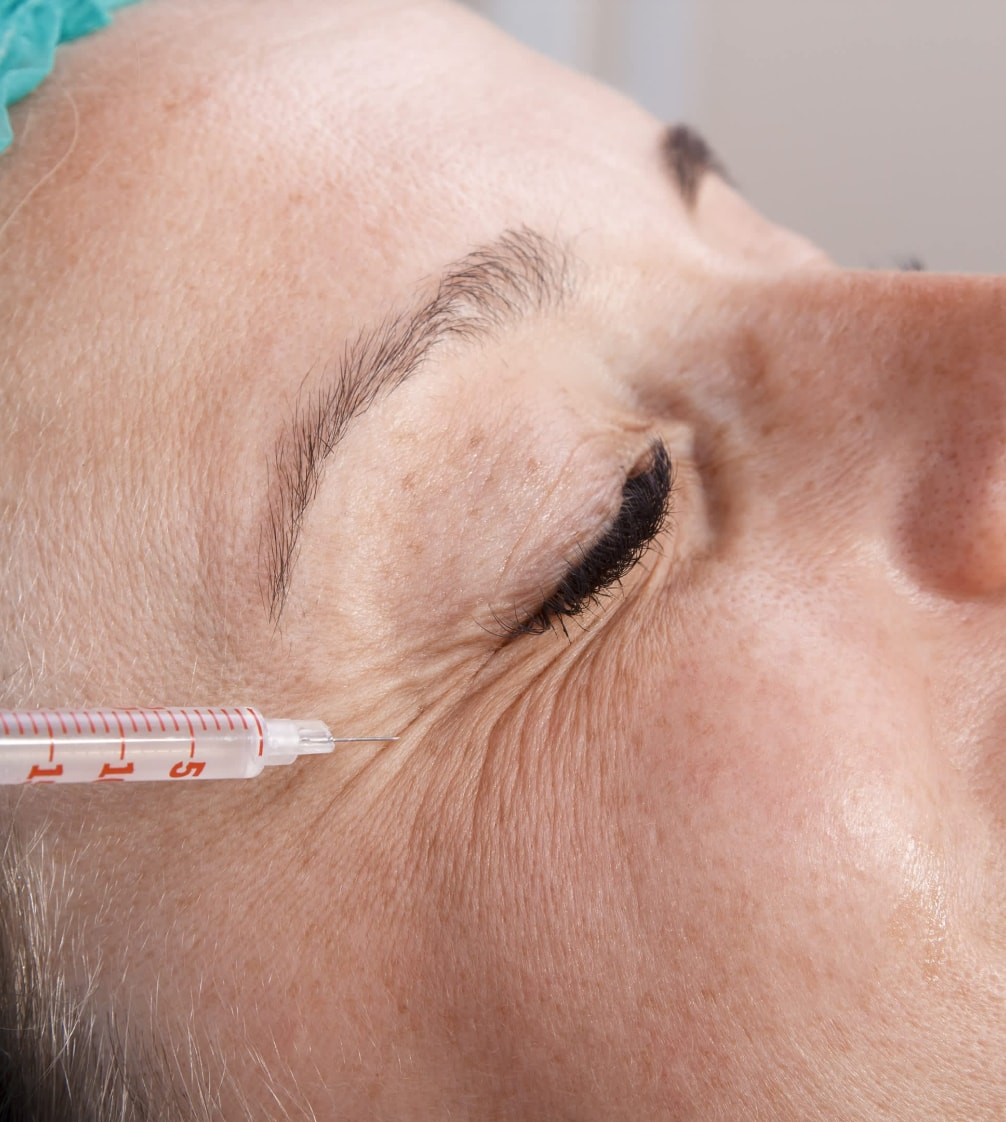 Botox injection procedure