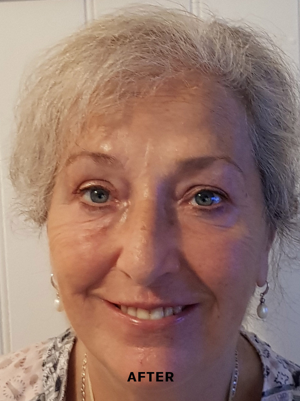 Non-surgical face lift results