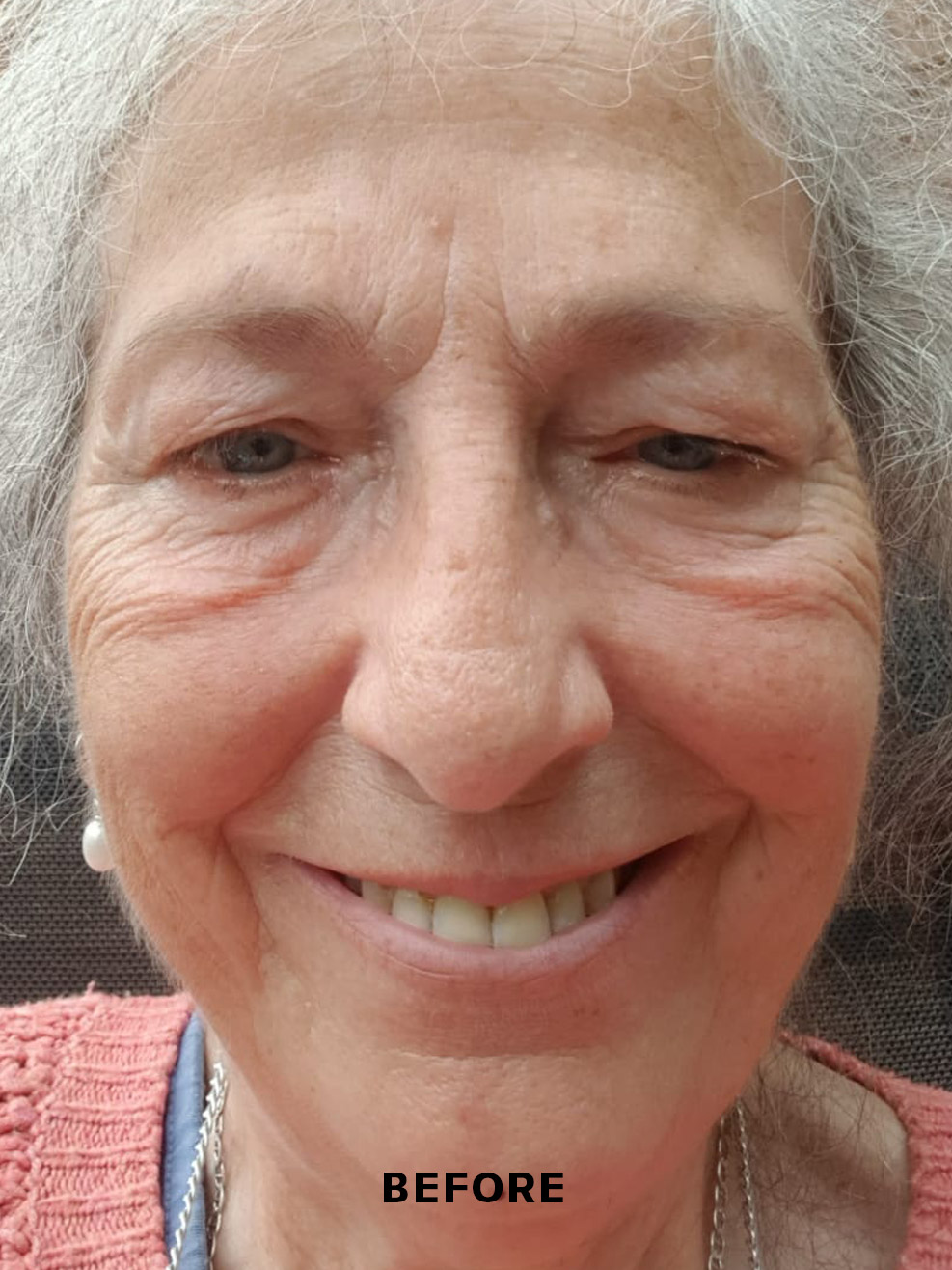 Non-surgical face lift before