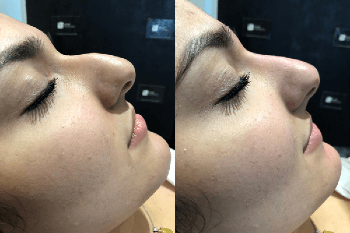 Non-surgical nose job before and after London