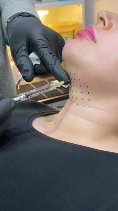 Fat dissolving injection procedure