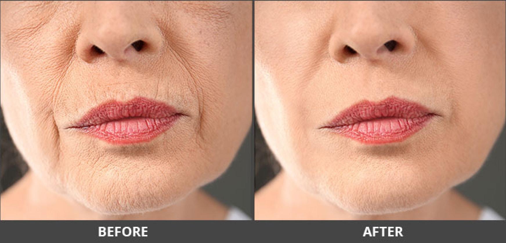 Chin enhancement result