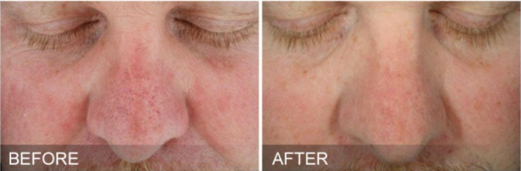HydraFacial pore results