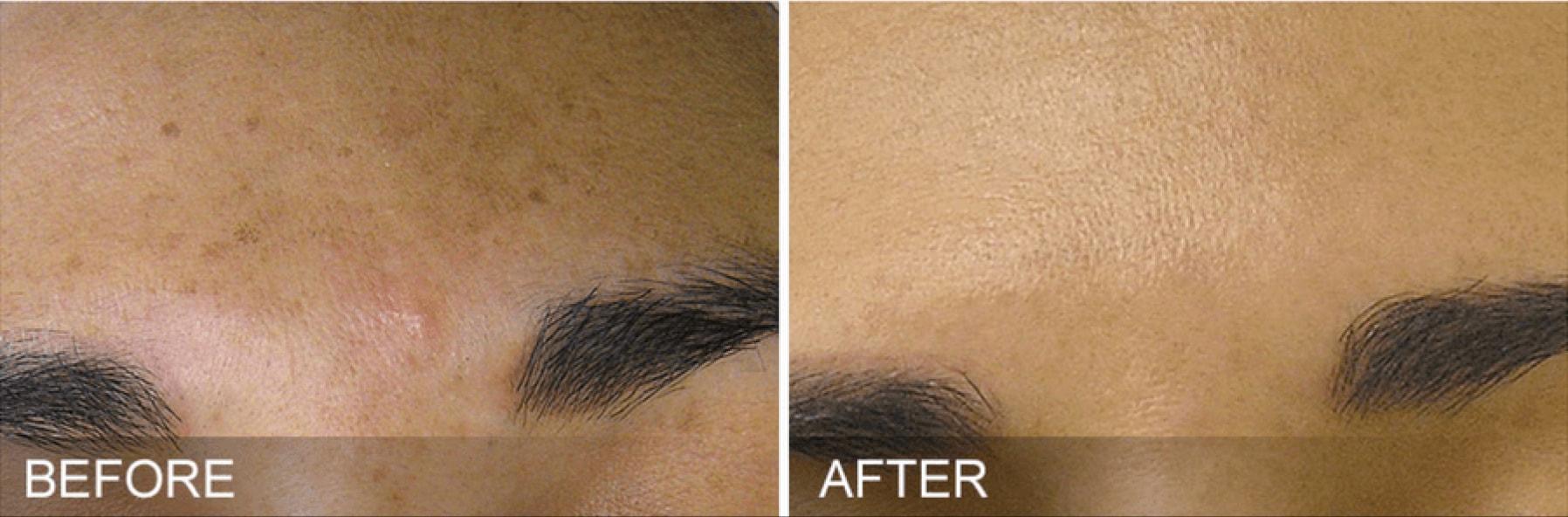 HydraFacial clear skin